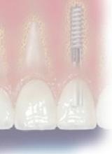Zahnimplantate in München von Praxis Dr. Litter